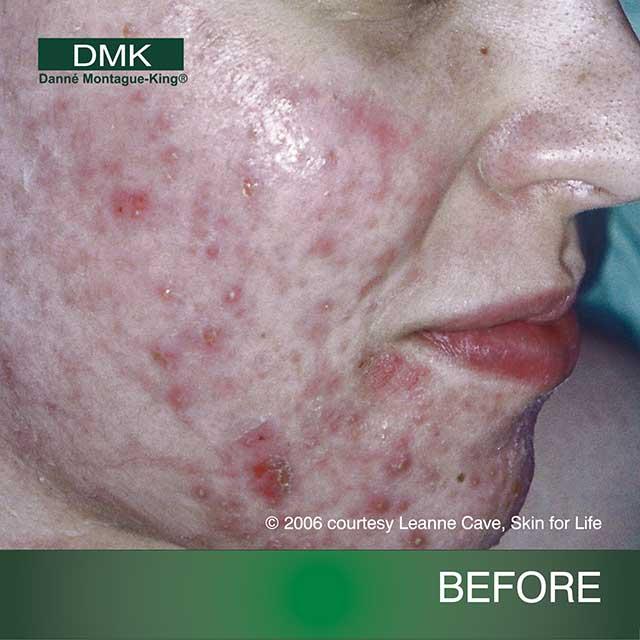 acne02bf