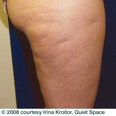 cellulite_before