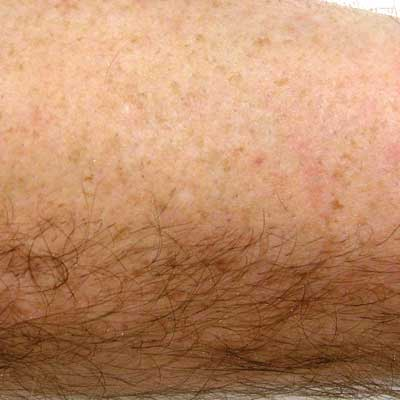 hair_removal_after