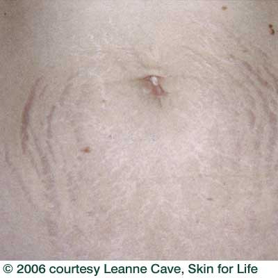 stretch-mark_before